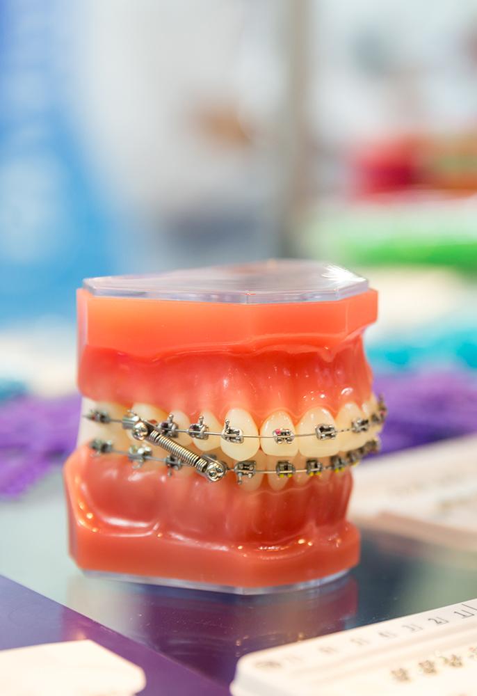 aparat-dentar-brasov