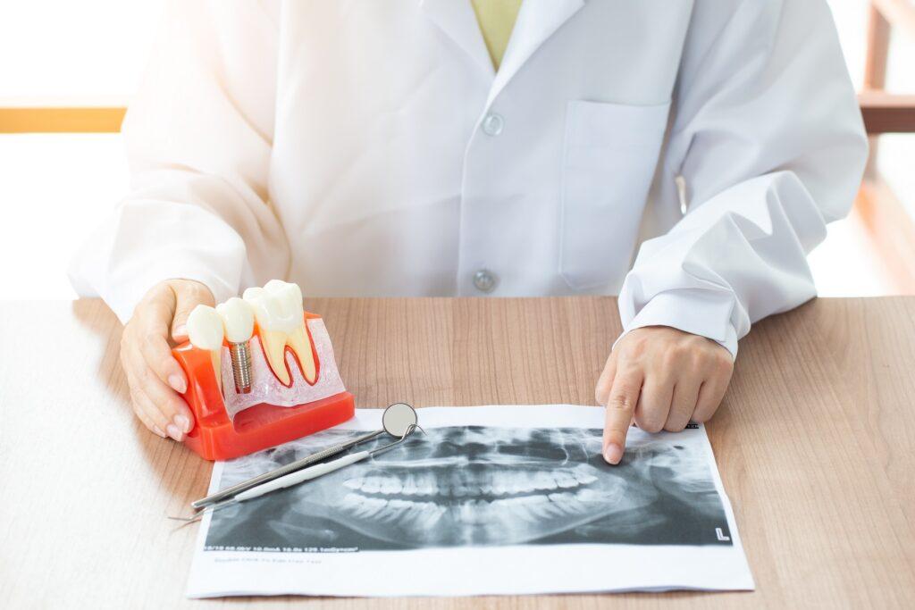 Care sunt contraindicațiile unui implant dentar?