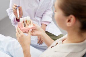 mituri-despre-implantul-dentar