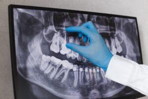 Care este factorul principal care duce la apariția unui implant dentar?