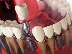 implanturi all-on-x